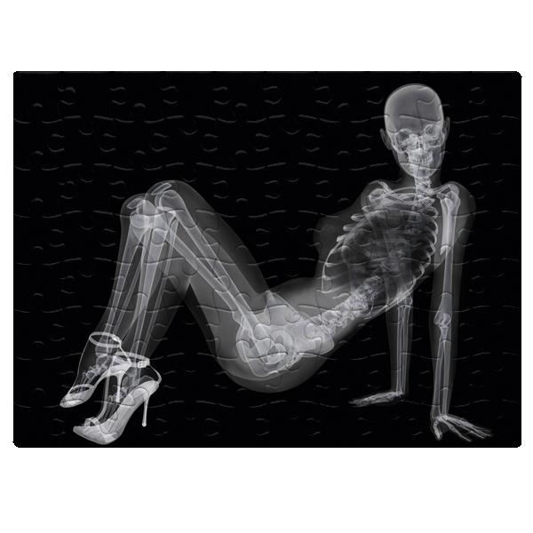 Скелет девушки на рентгене, магнитный пазл A5