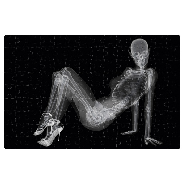 Магнитный пазл Скелет девушки на рентгене, формат A4