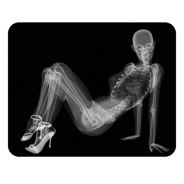 Скелет девушки на рентгене, коврик для мыши прямоугольный
