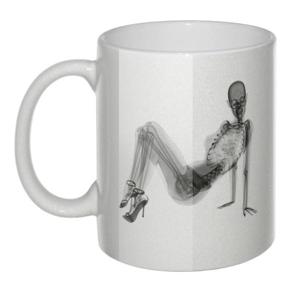 Перламутровая кружка Скелет девушки на рентгене